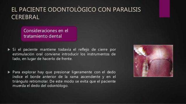 EL PACIENTE ODONTOLÒGICO CON PARALISIS CEREBRAL  Si el paciente mantiene todavía el reflejo de cierre por estimulación or...