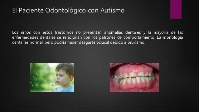 El Paciente Odontológico con Autismo Los niños con estos trastornos no presentan anomalías dentales y la mayoría de las en...