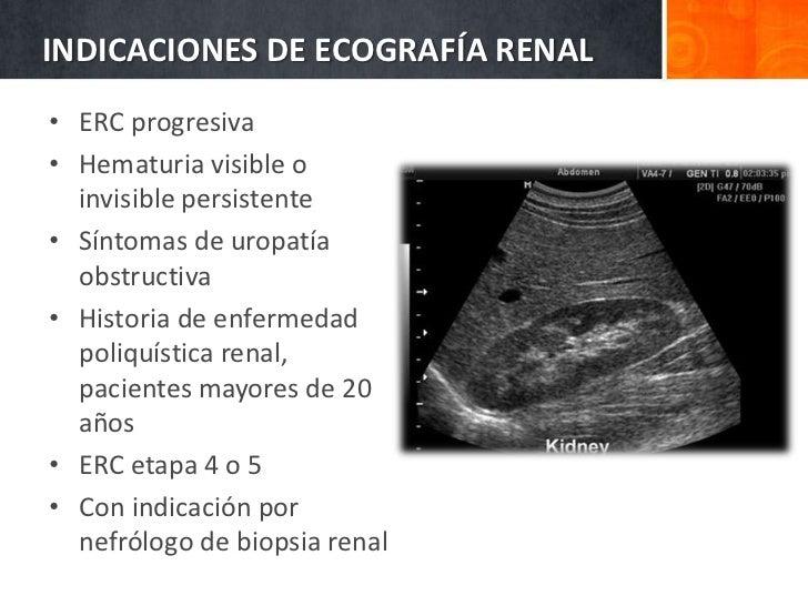 Manejo práctico de la enfermedad renal crónica