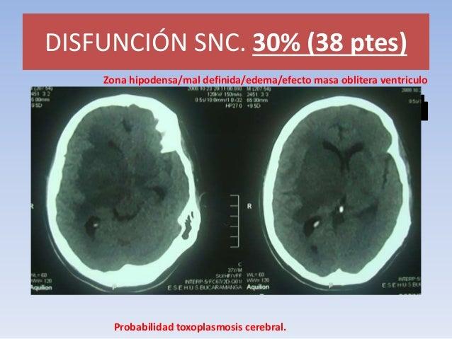 DISFUNCIÓN SNC. 30% (38 ptes)  MENINGITIS TUBERCULOSA. BK +  Agradecimiento. Dra Martha Jácome. Laboratorio ESE HUS.