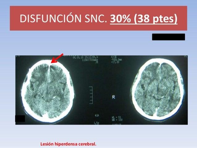 DISFUNCIÓN SNC.  Meningitis linfocitaria.  MENINGITIS TB VS VIRAL VS CRIPTOCOCO.