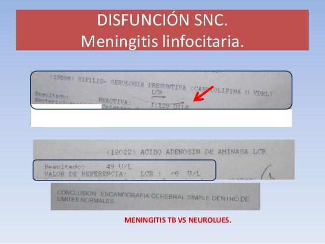DISFUNCIÓN SNC. 30% (38 ptes)  ¿qué hacer?. Medicina interna. (responsable)  TAC cerebral vs RNM cer gadolinio. Técnica fl...