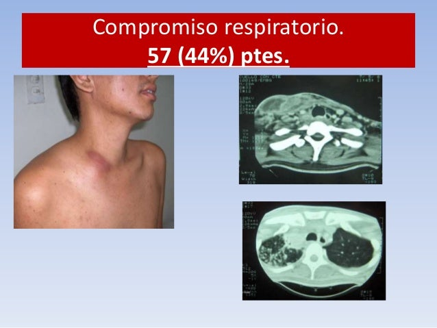 Compromiso respiratorio.  57 (44%) ptes.  Paciente VIH +  Cárcel  TOS  Expectoración  Dolor pleurítico derecho