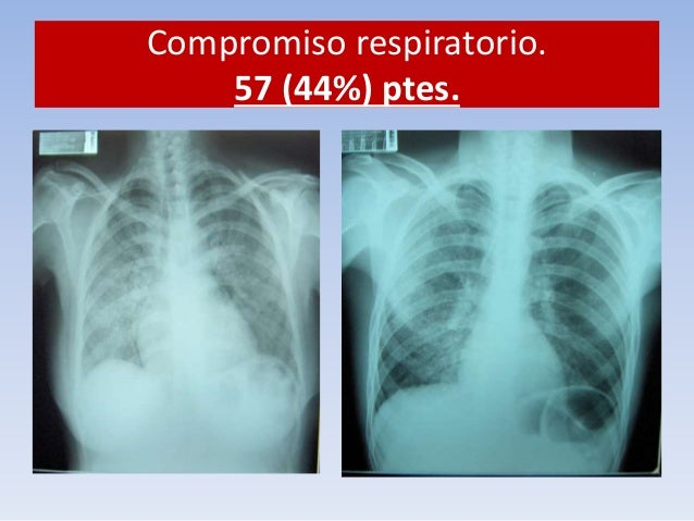 Compromiso respiratorio.  57 (44%) ptes.  Paciente VIH +  TOS  Expectoración  BK +