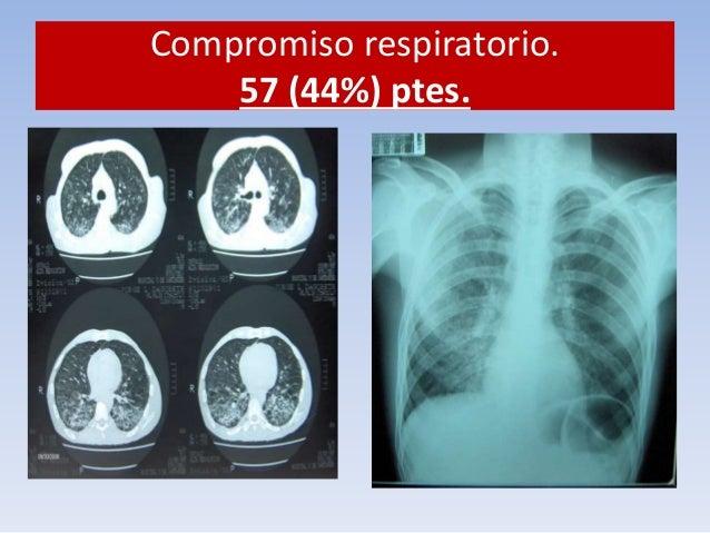 Compromiso respiratorio.  57 (44%) ptes.  Taxista  Sintomático  Respiratorio  BK +++