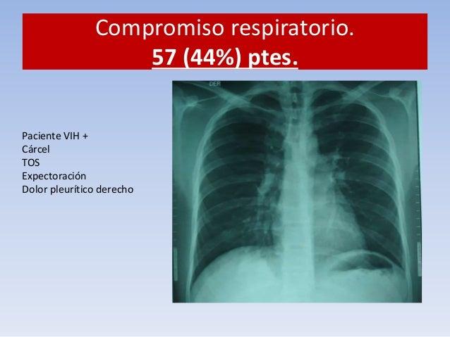 Compromiso respiratorio.  57 (44%) ptes.