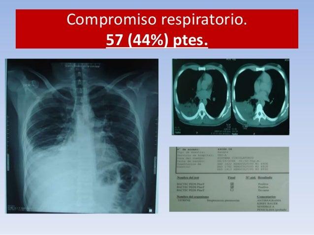 Compromiso respiratorio.  57 (44%) ptes.  Manejo como TB miliar.