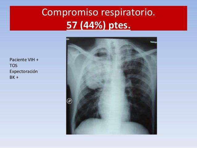 """Compromiso respiratorio.  57 (44%) ptes.  Neumonía por CMV. """"ojos de buho"""""""