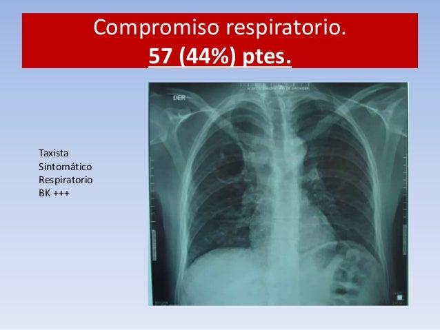 Compromiso respiratorio. 57 ptes.  ¿Qué hacer?  1. Aislamiento respiratorio. Mascarilla. N95.  2. Trimetropim sulfa. 15 mg...
