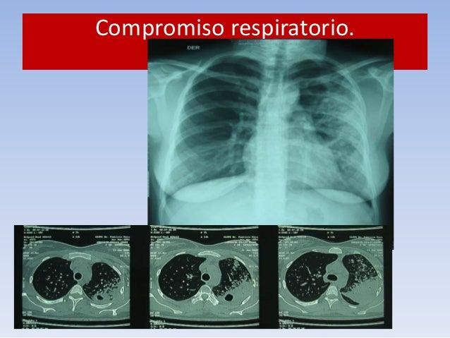 Compromiso respiratorio.  ¿Qué hacer?  1. Aislamiento respiratorio. Mascarilla. N95.  Detecta  93%  Descarta  97%  Cain KP...