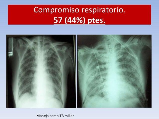 ¿Qué hacer?  1. Aislamiento respiratorio. Mascarilla. N95.  Compromiso respiratorio.  Bk +  Cultivo  micobacterias +  87% ...