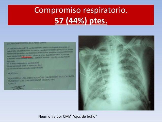 Compromiso hematológico. 24/127  (18.9%)