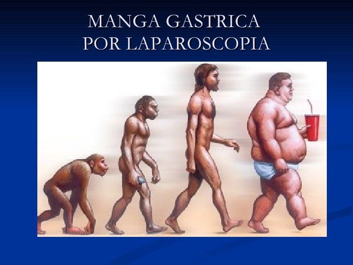 Manga Gastrica