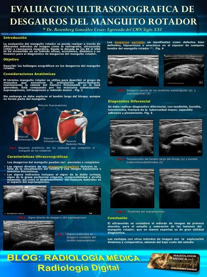 EVALUACION ULTRASONOGRAFICA DE    DESGARROS DEL MANGUITO ROTADOR                            * Dr. Rosenberg González Cesar...