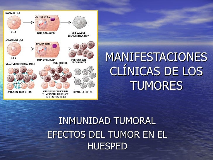 MANIFESTACIONES CLÍNICAS DE LOS TUMORES INMUNIDAD TUMORAL EFECTOS DEL TUMOR EN EL HUESPED