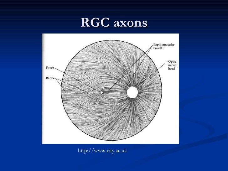 Anatomy and Lesions of Visual Pathways
