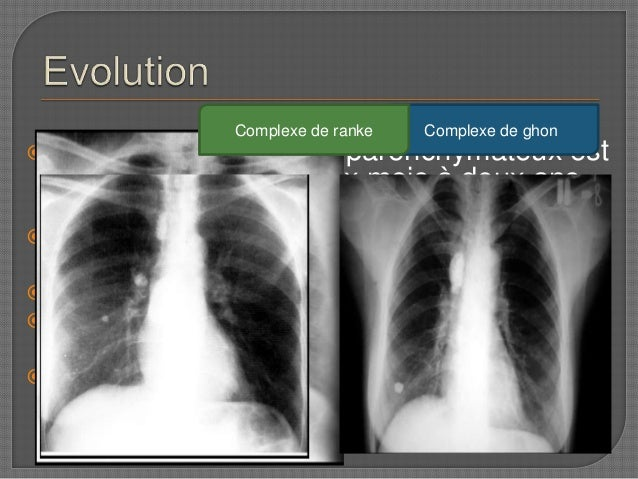 imagerie de tuberculose pulmonaire pdf