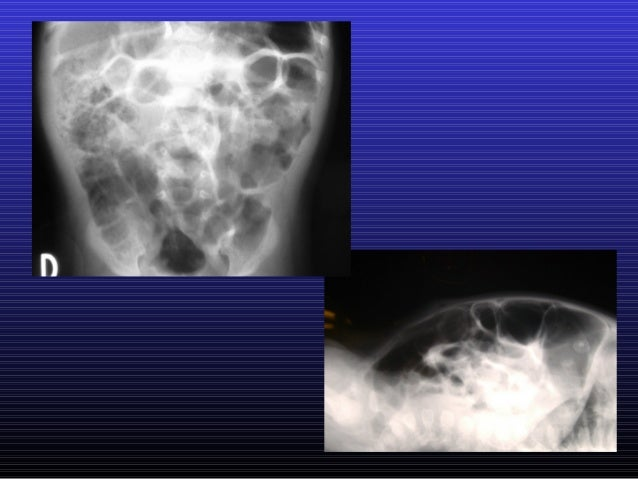 Manometría Anorectal  Dr. Jorge Godoy Lenz Hospital Luis Calvo Mackenna Clínica Las Condes Santiago-Chile