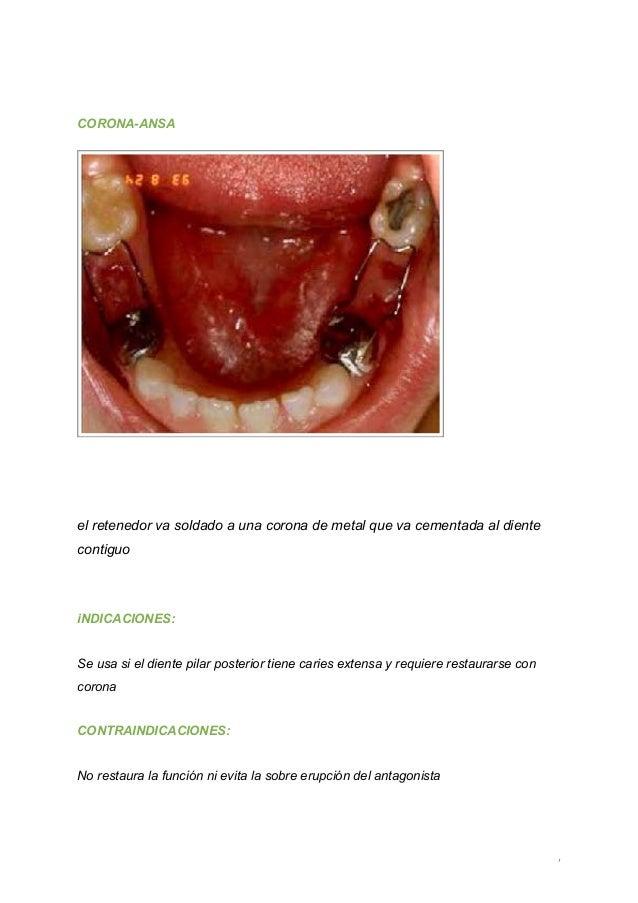 Odontopediatria mantenedores pdf espacio en de