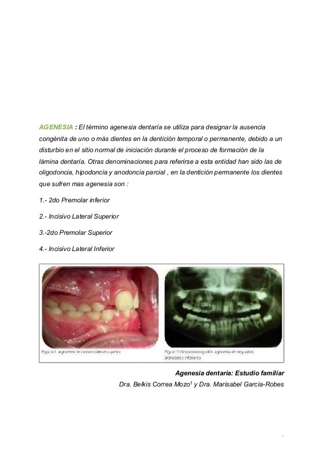 Mantenedores De Espacio En Odontopediatria Pdf