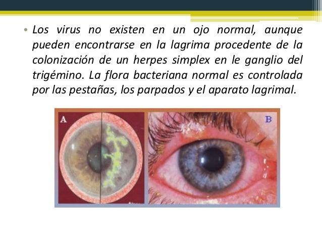 40f597ea33 Mantenimiento de lentes de contacto blandas