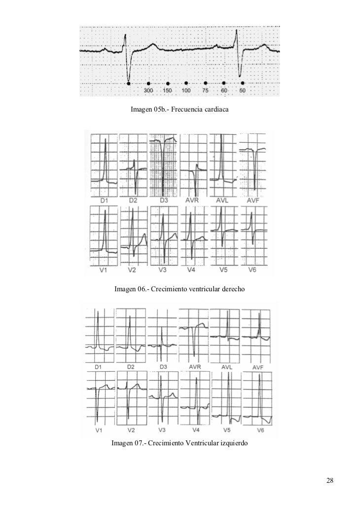 Manual Electrocardiograma