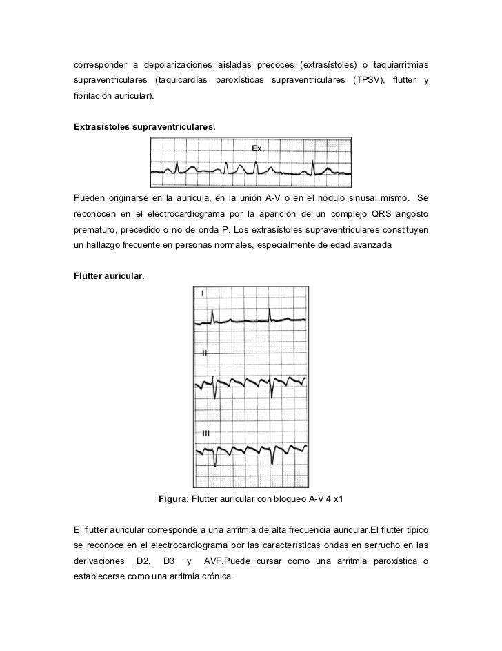 trazodone 100 mg tab myl