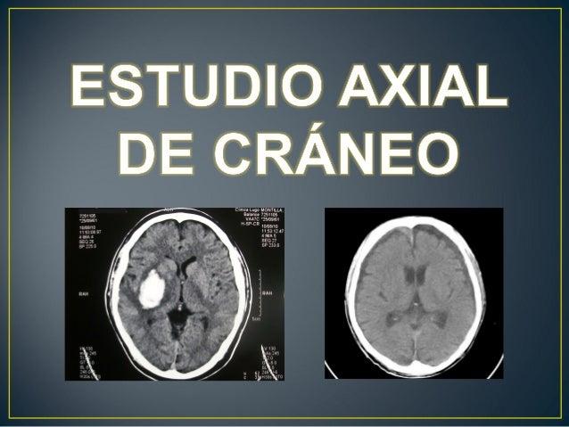 Anatomia de cráneo