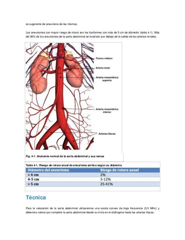 Excepcional Aorta Y Sus Ramas Anatomía Imagen - Imágenes de Anatomía ...