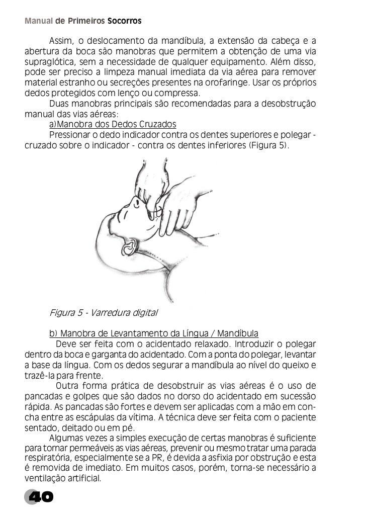 Capítulo I GeralSuporte Respiratório      A ventilação artificial é indicada nos casos de as vias aéreas estarempermeáveis...