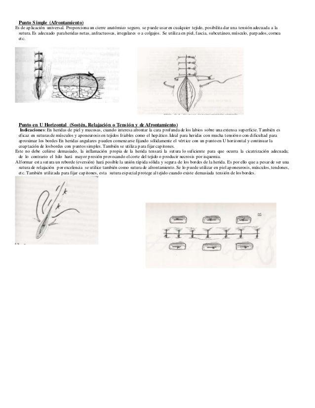 Manual de sutura en Medicina Veterinaria