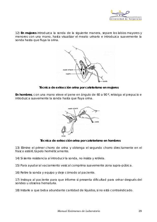 Toma de muestra de orina completa pdf