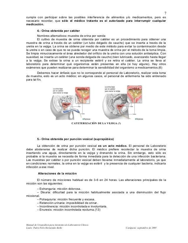tomate de arbol aumenta el acido urico agua con bicarbonato para el acido urico remedio casero para reducir el acido urico