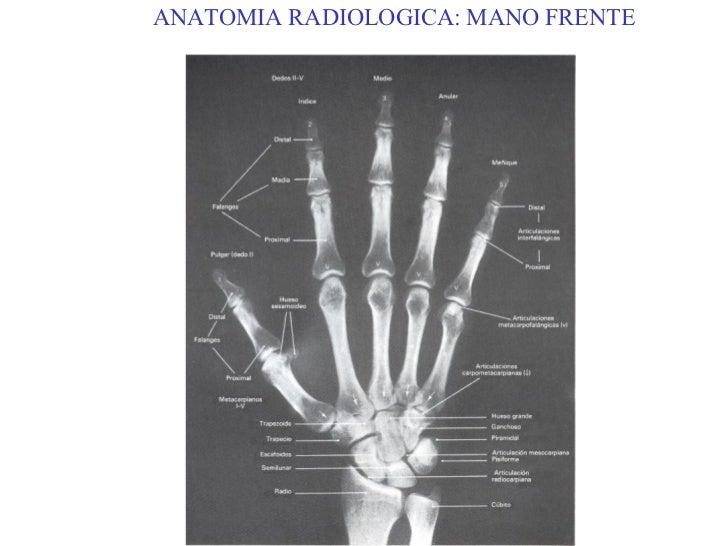 Contemporáneo Anatomía De La Mano Mri Modelo - Anatomía de Las ...