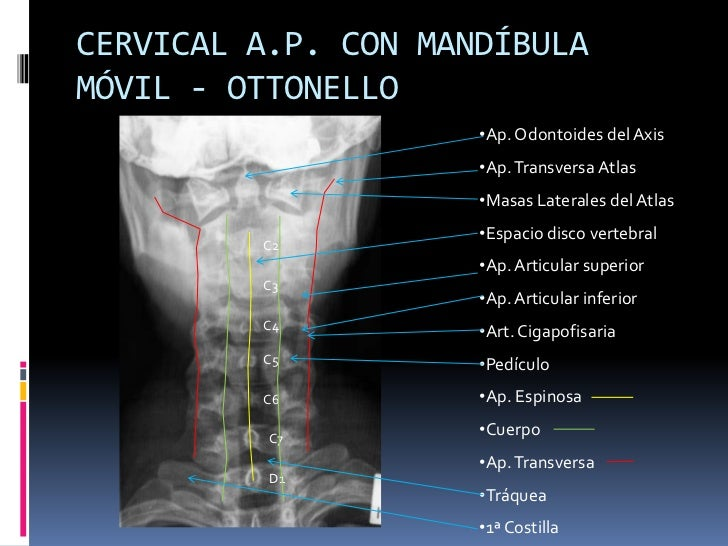Manual rx columna vertebral