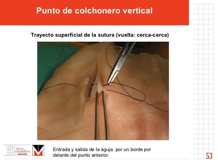53 Punto de colchonero vertical Trayecto superficial de la sutura (vuelta: cerca-cerca)   Entrada y salida de la aguja  po...