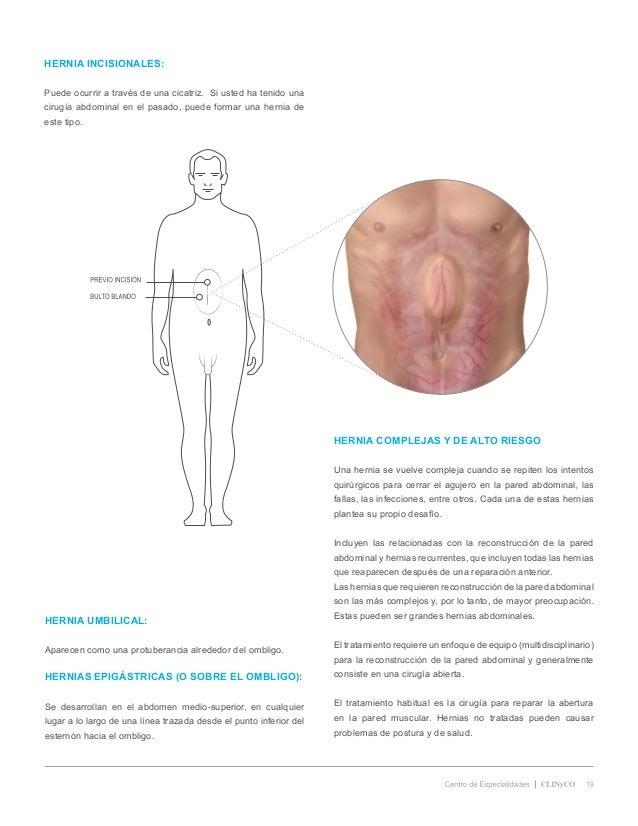 Ausgezeichnet Anatomy Of Umbilical Hernia Zeitgenössisch - Anatomie ...
