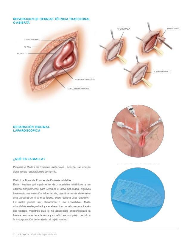 Contemporáneo Laparoscópica De Hernia Reparación De La Anatomía ...