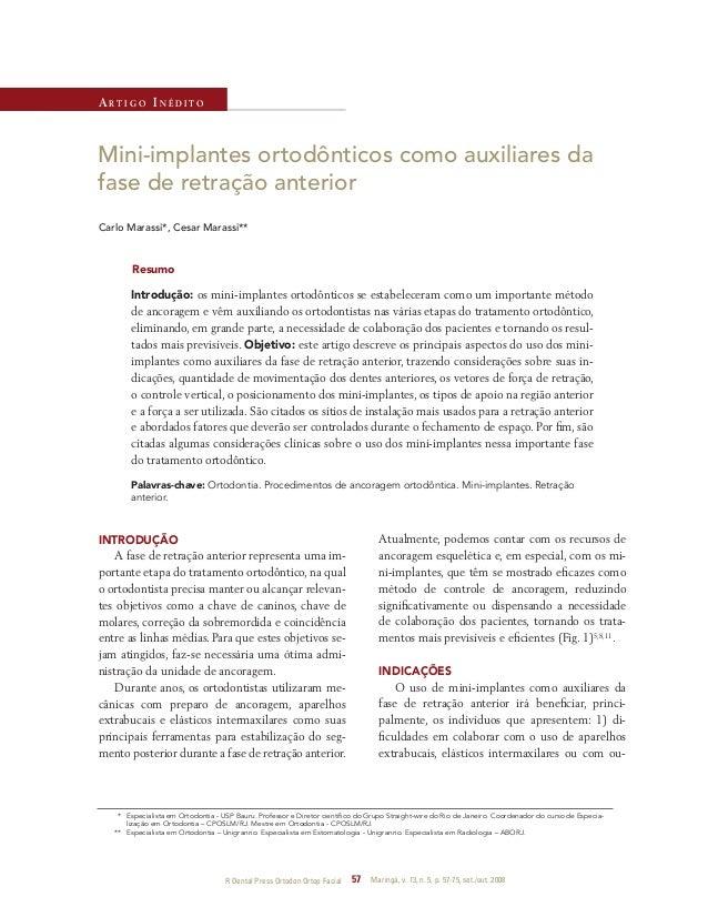 R Dental Press Ortodon Ortop Facial 57 Maringá, v. 13, n. 5, p. 57-75, set./out. 2008 Mini-implantes ortodônticos como aux...