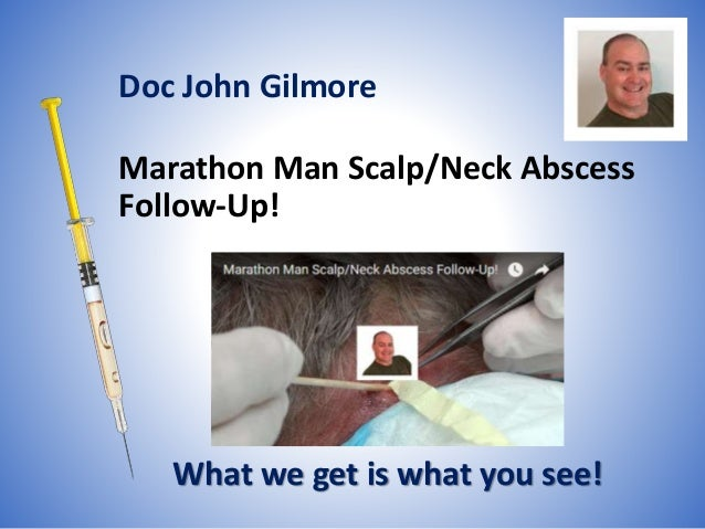 Marathon Man Scalp/Neck Abscess Follow-Up! What we get is what you see! Doc John Gilmore