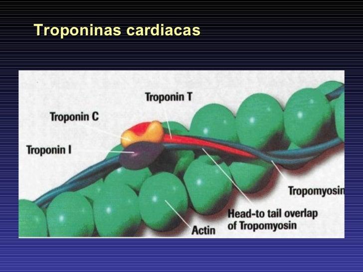 Troponinas cardiacas