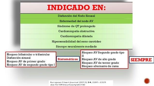 Marcapasos en urgencias 2015 Slide 2