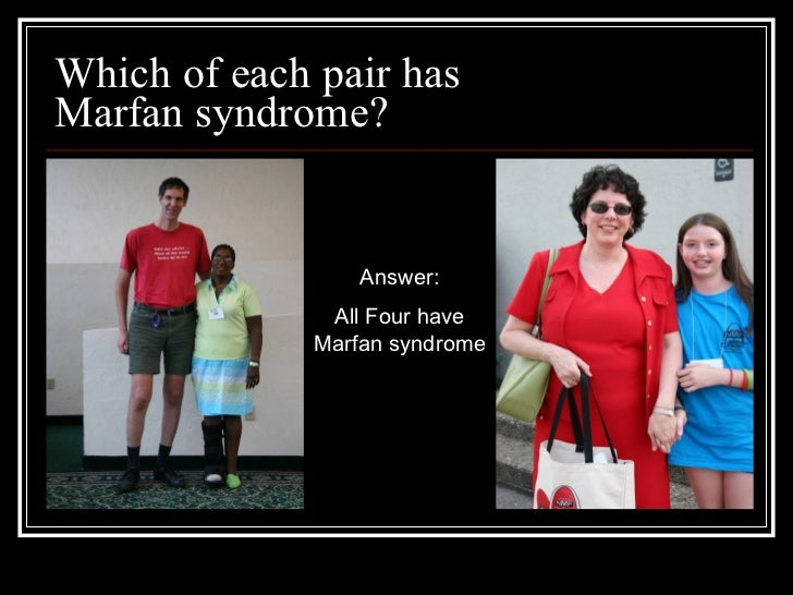 Marfan Syndrome And The School Nurse