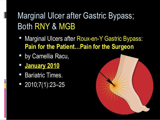 Marginal Ulcer Gastric Bypass
