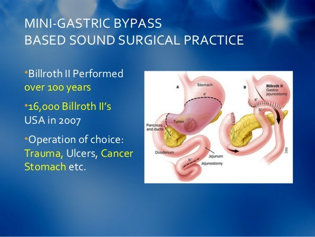 marginal ulcer after gastric bypass