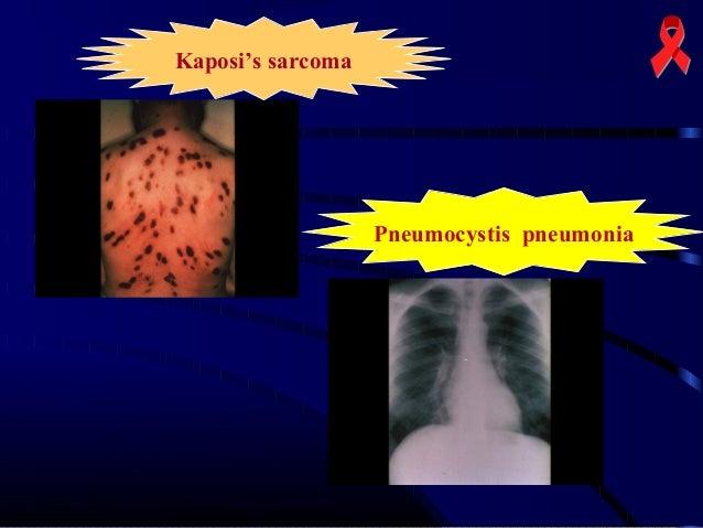 Kaposi's sarcoma  Pneumocystis pneumonia