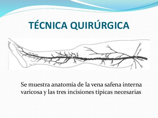 Safenovaricocectomia