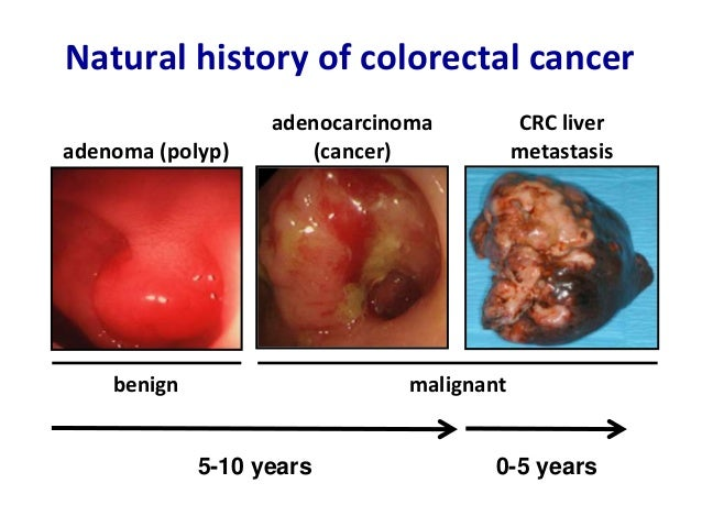 Colon Cancer Natural History