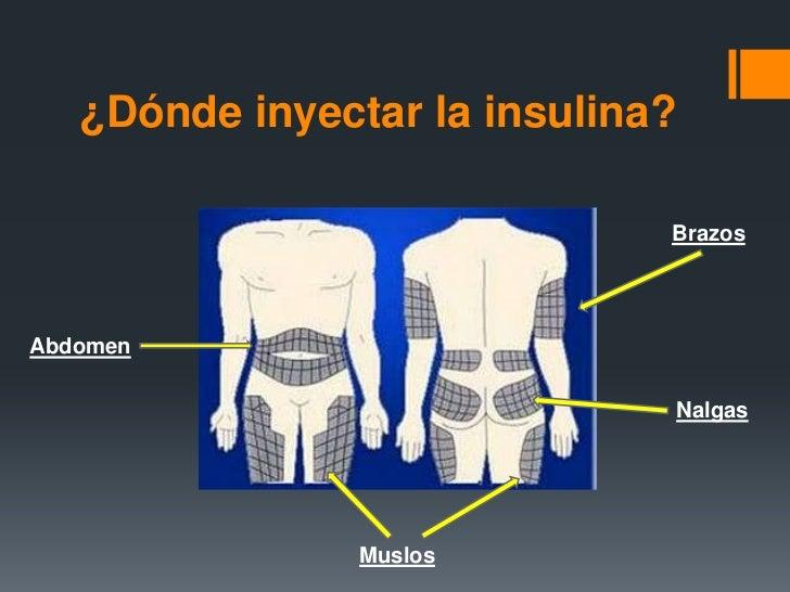 Marta. Insulina