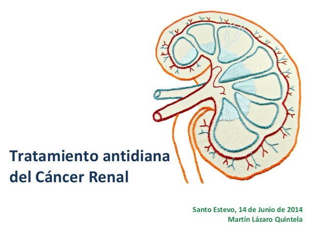 Tratamiento antidiana del Cáncer Renal Santo Estevo, 14 de Junio de 2014 Martín Lázaro Quintela